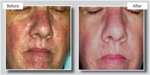rosacea laser treatments top laser clinic Birmingham
