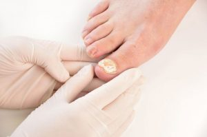 Fight Nail Fungal Infection With Laser Treatments At Birmingham Salon